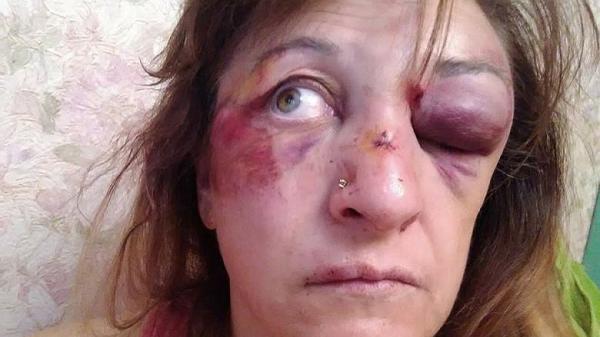 В Киеве врачей бьют ногами за отказ от взяток