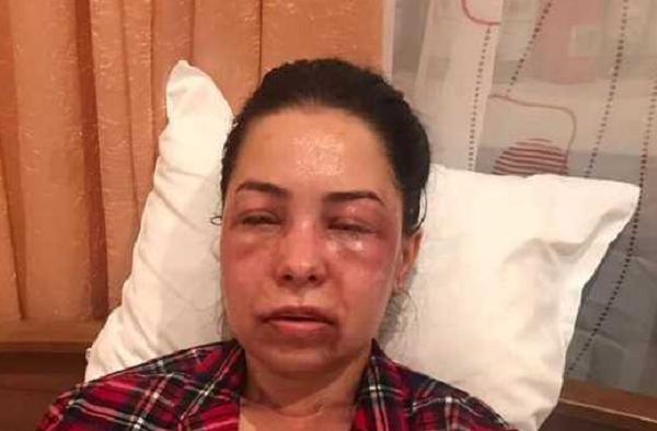 """""""Зрение повреждено"""": появились фото женщины, облитой кислотой экс-мужем в Днепре"""