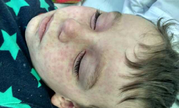 Цирк «Кобзов» распостраняет опаснейшую инфекцию в Киеве