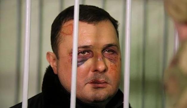 Несколько переломов: подробности задержания экс-регионала Шепелева