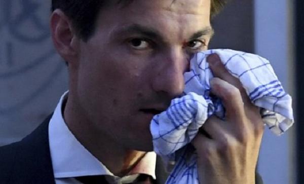 Новоизбранному мэру Фрайбурга сломали нос в честь победы в выборах