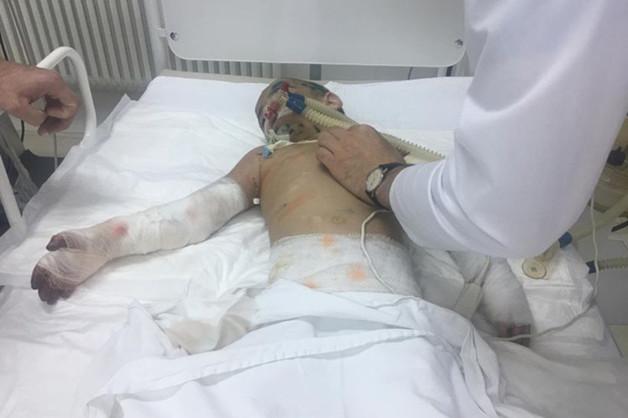 Девочка со следами пыток госпитализирована в Ингушетии