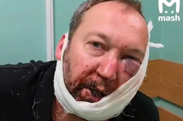 В Москве избили топ-менеджера рекламного агентства Mosaic