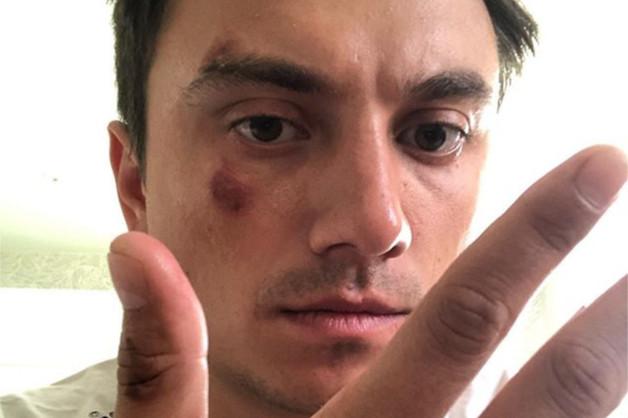 Избивший новосибирского фокусника таксист стал фигурантом уголовного делa