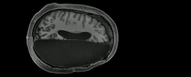Ученые выяснили, почему люди могут нормально жить с одним полушарием мозга